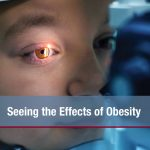 Seeing the Effects of Obesity