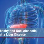 Obesity and Non-Alcoholic Fatty Liver Disease