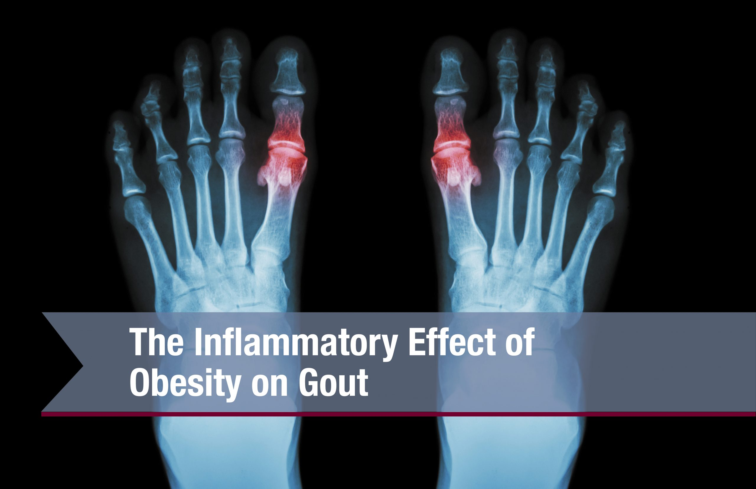 Effect Of Obesity On Gout